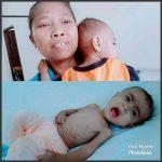 Rafa Bayi 10 Bulan Penderita Gizi Buruk, Dapat Perhatian Khusus Dari ROR-RD